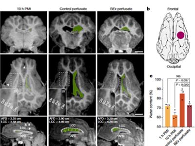 Restauración de la Circulación Cerebral y Funciones Celulares Horas Después de Muerto